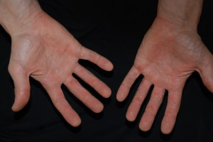 Dave's Hands after 3 days